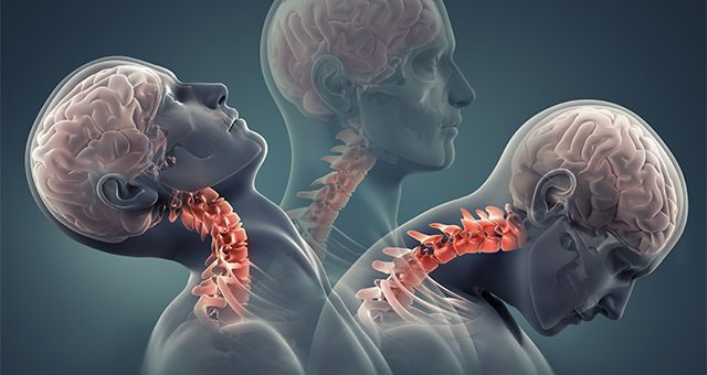 WHIPLASH INJURY O COLPO DI FRUSTA: IL PUNTO DI VISTA DELL'OSTEOPATIA
